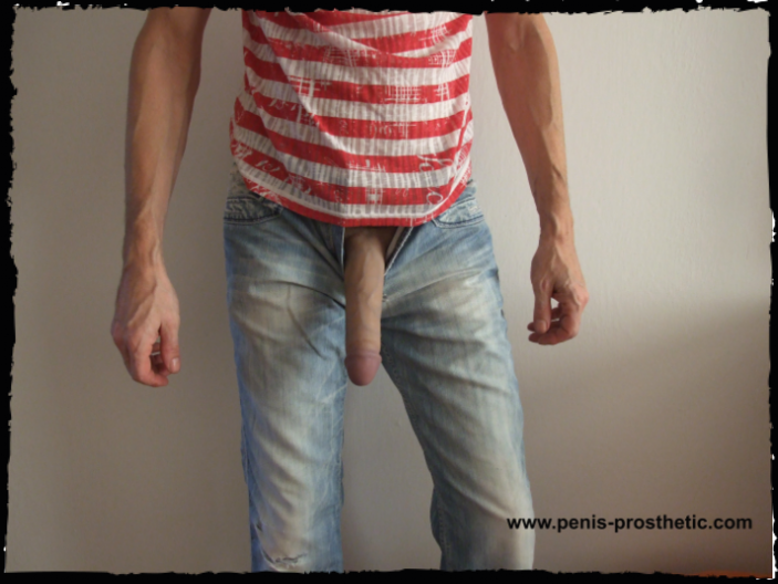 Enlargement penis prosthetic