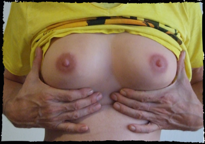 breast silicone prosthetic